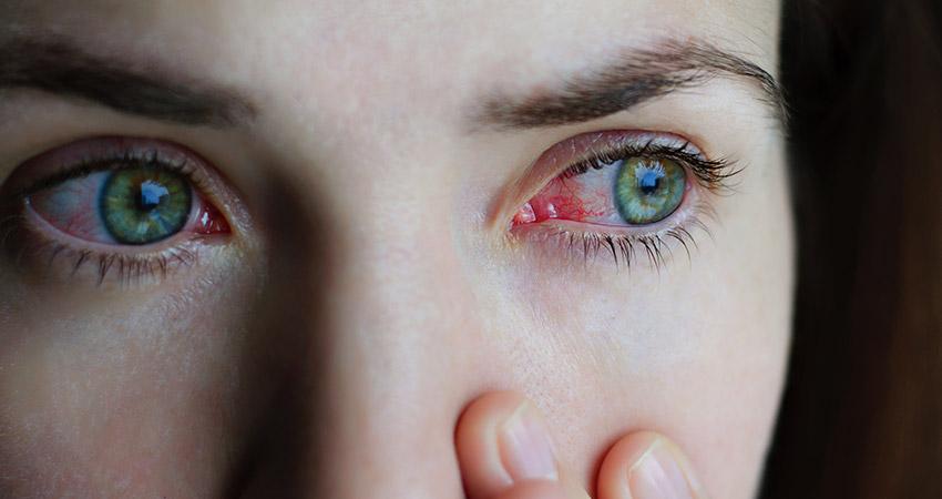 dry red eyes