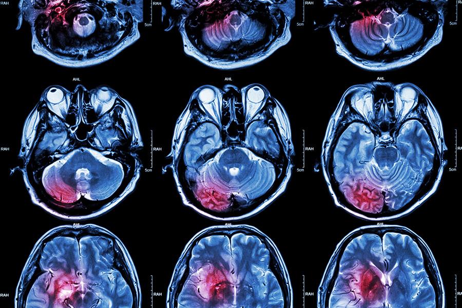 Stem cell treatment for brain injury stroke