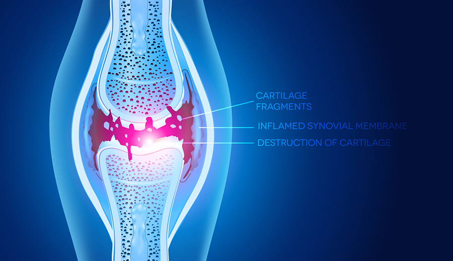 osteoarthritis damaged joint