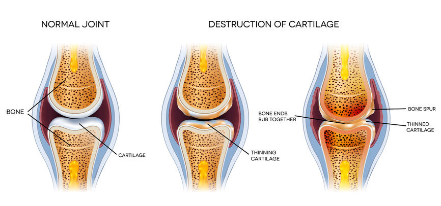 osteoarthritis graphic